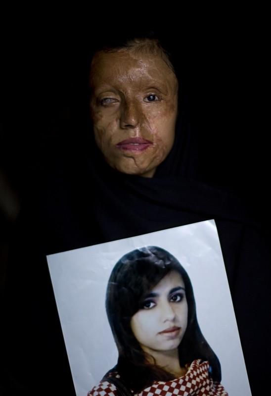 Violencia de género en Pakistán, de Emilio Morenatti