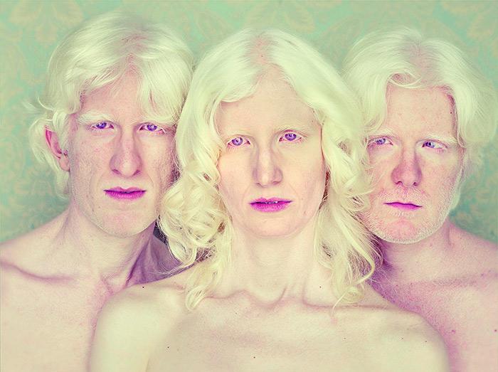 Gustavo-Lacerda--Serie-Albinos